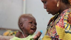 A malnourished child receiving treatment in a Cameroon hospital